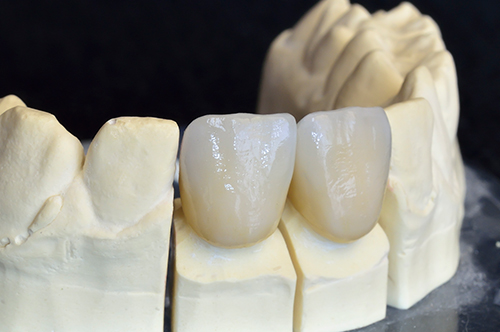 Childress dental crowns